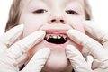 Examining caries teeth decay Stock Image