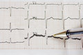 Excitedly heart mild sings of arrhythmia close up of ecg graph Stock Photo