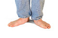 Extemely flat feet and fallen arches Royalty Free Stock Photo