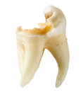 Extracted tooth with caries isolated on white background