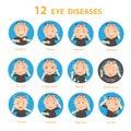 Eye diseases Royalty Free Stock Photo