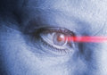 Eye laser operation with for better vision Stock Photos