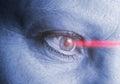 Eye laser operation