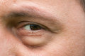 Eyesore inflammation or bag swelling under eye medical problem like conjunctivitis Stock Photography
