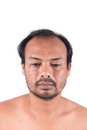 Face man bald head Royalty Free Stock Photo
