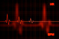 Failure Heart Rate Graph Background Royalty Free Stock Photo