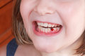 Fallen baby tooth in girl mouth of little Stock Image