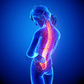 Female back pain illustration of spine with highlighted spinal cord on blue Stock Photos