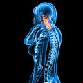 Female neck pain d rendered medical x ray illustration of transparent and black background Stock Photo