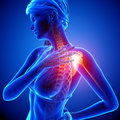 Female shoulder pain illustration of highlighted Royalty Free Stock Photos