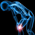 Female skeleton with knee pain Royalty Free Stock Photography