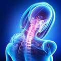Female skeleton with pain in neck d rendered medical x ray illustration of Royalty Free Stock Image
