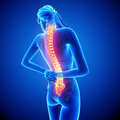 Female spine pain illustration of with highlighted spinal cord on blue Stock Photo