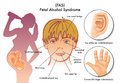 Fetal alcohol syndrome medical illustration of the symptoms of Stock Photography
