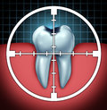 Fight cavities as a tooth cavity close up symbol with a target icon aiming at the oral disease as a health care concept for bone Royalty Free Stock Photos