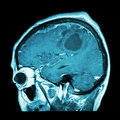 Film MRI of brain with brain tumor ( Sagittal plane , side view , lateral view ) ( Medical , Health care , Science Background ) Royalty Free Stock Photo