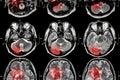Film MRI ( Magnetic resonance imaging ) of brain ( stroke , brain tumor , cerebral infarction , intracerebral hemorrhage )  ( Medi Royalty Free Stock Photo
