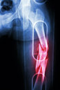 Film X-ray show comminute fracture shaft of femur (thigh bone). It was spliced Royalty Free Stock Photo