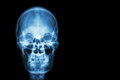 Film x-ray skull of human and blank area at right side ( Medical , Science and Healthcare concept and background ) Royalty Free Stock Photo