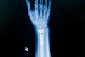 Film x ray wrist fracture show fracture distal radius forearm s bone with inserted plate Royalty Free Stock Images