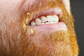 Filthy beard ugly red closeup Royalty Free Stock Images