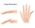 Finger dislocation Stock Images
