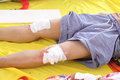 First aid by use gauze arrange cover on wound of leg Royalty Free Stock Photo