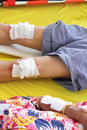 First aid by use gauze arrange cover on wound of leg Stock Photography