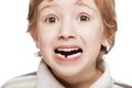 First baby milk or temporary tooth fall out Royalty Free Stock Photo