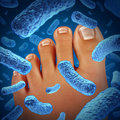Foot bacteria disease causing a smelly odor with a close up of the human body showing toes with blue bacterial infection danger as Stock Photography