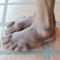 Foot of gout patient with Royalty Free Stock Photo