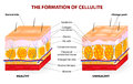 The formation of cellulite vector diagram occurs in most females and rarely in males Royalty Free Stock Photography