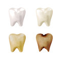 Four different teeth bright white to yellow to decayed rotten white isolated background dentist concept Royalty Free Stock Photography