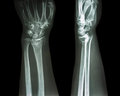 Fracture distal radius colles fracture wrist broken Royalty Free Stock Photos
