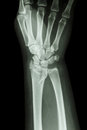 Fracture distal radius forearm s bone fiilm x ray wrist show Royalty Free Stock Photography