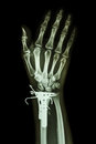 Fracture distal radius forearm s bone film x ray wrist ap show it was operated and inserted plate and k wire kirschner wire Stock Images