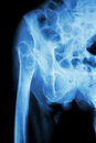 Fracture head of femur (thigh bone) Royalty Free Stock Photo