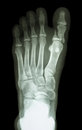 Fracture proximal phalange at first toe film x ray show Royalty Free Stock Photography