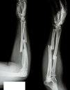 Fracture radius ulnar bone shaft of Stock Photo
