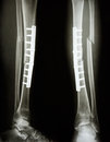 Fracture shaft of tibia and fibula Royalty Free Stock Images