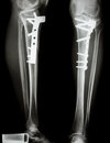 Fracture tibia leg bone it was operated and internal fixed by plate screw Stock Photo