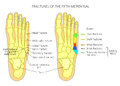 Fractures Of The 5th Metatarsal