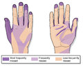 Frequently missed areas when cleaning hands Royalty Free Stock Photo
