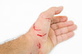 Fresh wound and blood Royalty Free Stock Photo
