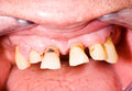Frontal teeth Stock Images
