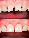 Before after frontal teeth and restoration Royalty Free Stock Image