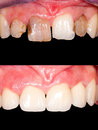 Before after frontal teeth restoration with ceramic crowns Stock Image