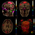 Functional Brain Magnetic Resonance Stock Photography