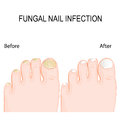 Fungal nail infection. Before and after Renewal Treatment.