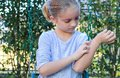 Girl with Eczema on Arms and Face Royalty Free Stock Photo